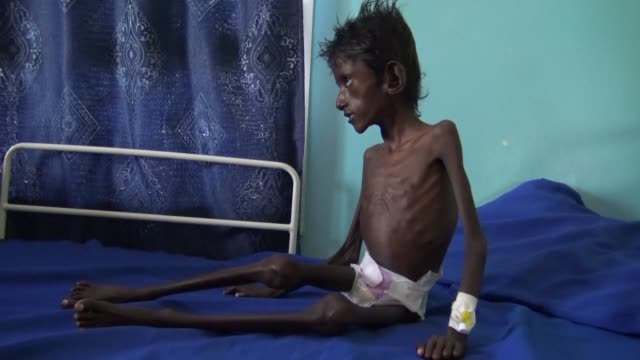 skin and bones 5 year old abdel rahman lies on a hospital bed in the yemeni province of hodeida with the bones in his emaciated body protruding and... - yemen bildbanksvideor och videomaterial från bakom kulisserna