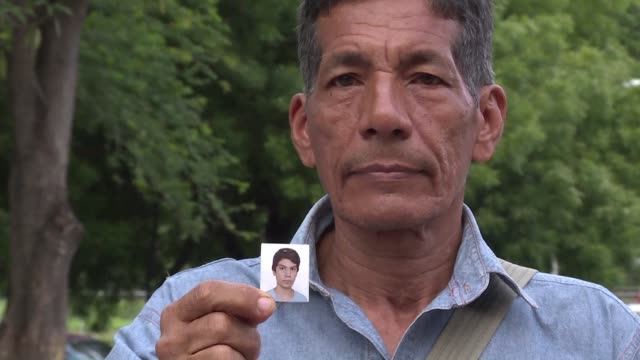 skin pinched by pliers taking hits from a hammer four days of detention have left a permanent scar on luis whose name has been changed for his... - scar stock videos and b-roll footage