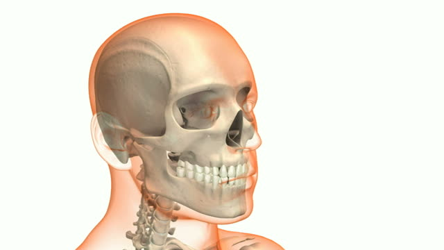 skull fracture - skull stock videos and b-roll footage