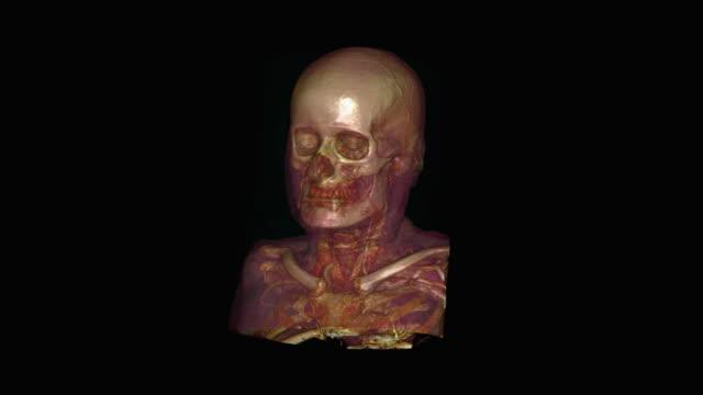 vidéos et rushes de skull of elderly man - illustration biomédicale