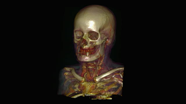 skull of elderly man - biomedical illustration stock videos & royalty-free footage