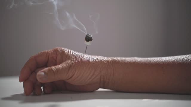 vídeos de stock, filmes e b-roll de acupuntura em câmera lenta e tratamento de moxibusção queima erva moxa em agulhas presas à pele da mão do homem sênior - braço humano