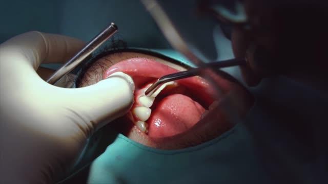 vídeos de stock, filmes e b-roll de 4k câmera lenta filmagens closeup de dentista verificando e dentes, limpeza e polimento para paciente homem na clínica odontológica, dentes cuidados e dental check-up conceito - saúde dental