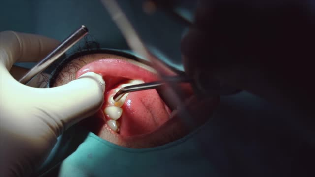 4k slow motion footage closeup of dentist checking and teeth cleaning and polishing to man patient at dental clinic, tooth care and dental check up concept - plaque bacteria stock videos & royalty-free footage