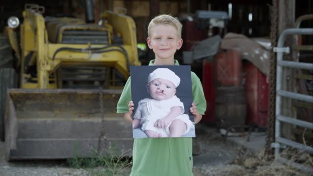 slow motion of boy showing photo of himself as baby with cleft palate. - korta ärmar bildbanksvideor och videomaterial från bakom kulisserna