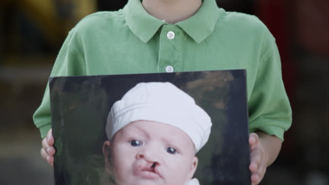 Slow motion of boy smiling with cleft lip.