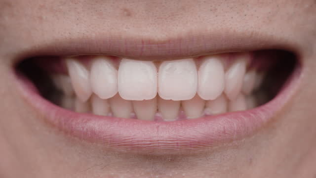 smile white teeth - dentist stock videos & royalty-free footage