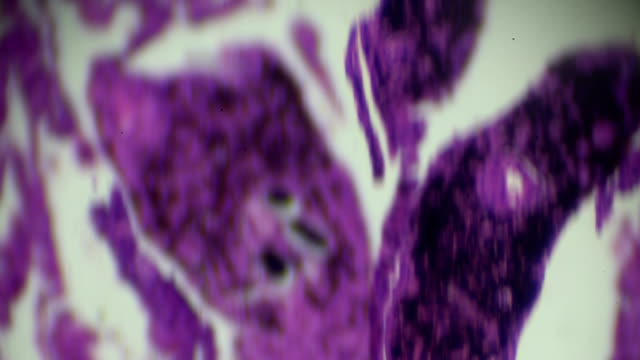 smoke lung with black deposit in microscopy - stain test stock videos & royalty-free footage
