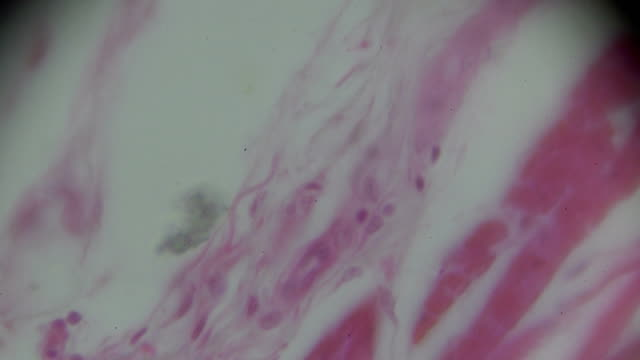 smooth muscle cross section in mircoscope - arteria video stock e b–roll