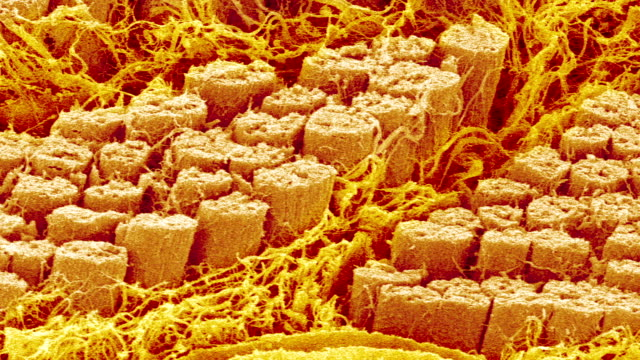 """smooth muscle fibres, sem"" - microbiology stock-videos und b-roll-filmmaterial"