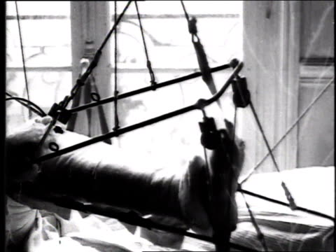soldier laying in hospital bed with leg in traction demonstrating movement of leg up and down / france - ギプス点の映像素材/bロール