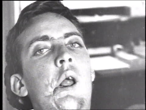 vidéos et rushes de a soldier with a scarred damaged mouth and jaw staring openmouthed and unmoving / france - blessure physique