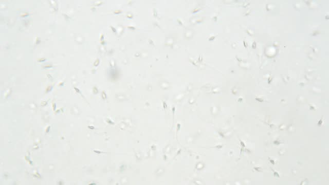 sperm under microscope 400x - grey stock videos & royalty-free footage