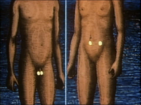 1985 animation split screen of male and female sex glands releasing hormones - figura maschile video stock e b–roll