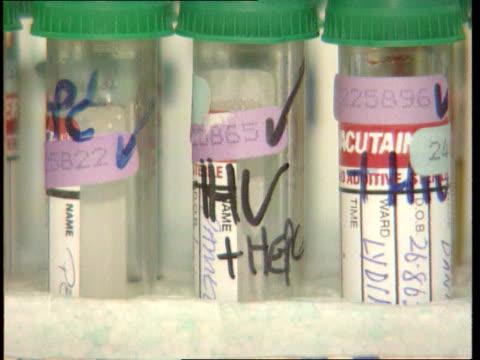 spread of hiv virus amongst women itn lib london ms technicians in laboratory with microscopes cs jar on shelf marked hiv technician looking into... - retrovirus stock videos and b-roll footage