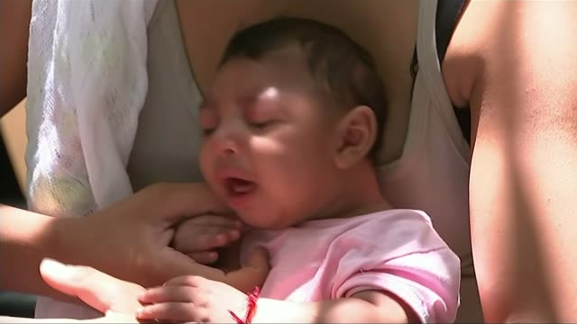 Spread of Zika virus Recife EXT Close shots of baby with microcephaly condition Baby having head measured by doctor