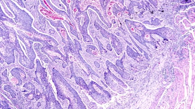 vidéos et rushes de carcinome de cellules squamous sous microscopie - carcinome