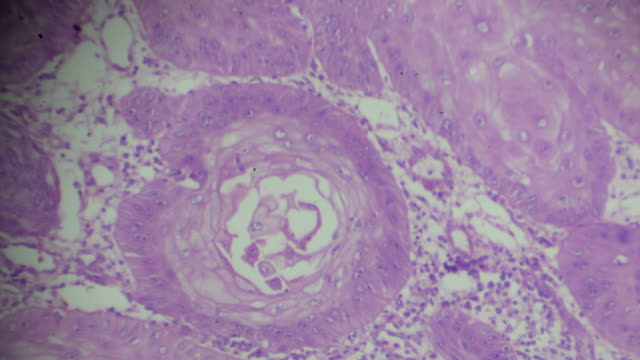 Squamous Cell carcinoma under microscopy,different area and