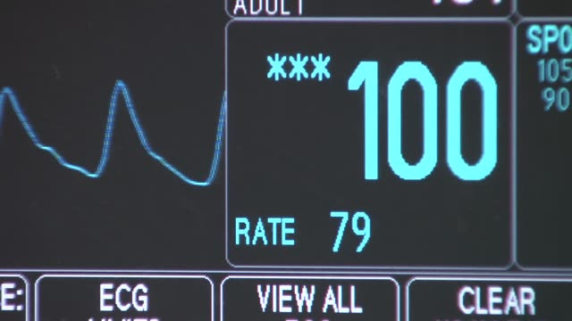 vidéos et rushes de st peter's hospital emergency unit heart monitor in hospital room on december 23 2013 in new york new york - bloc