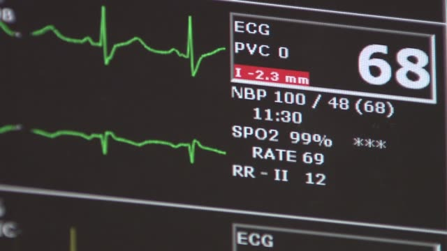 st peter's hospital emergency unit heart monitor on december 23 2013 in new york new york - cardiac conduction system stock videos and b-roll footage