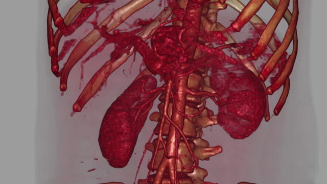 state college - biomedical illustration video stock e b–roll