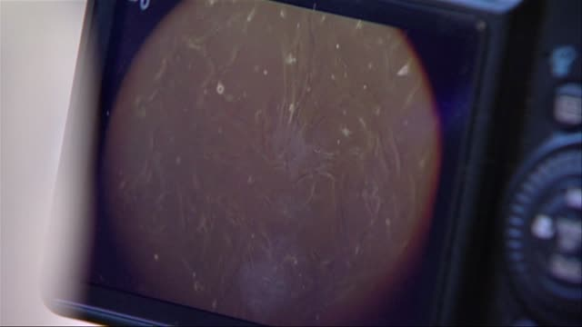 vídeos de stock e filmes b-roll de stem cells under microscope - célula tronco
