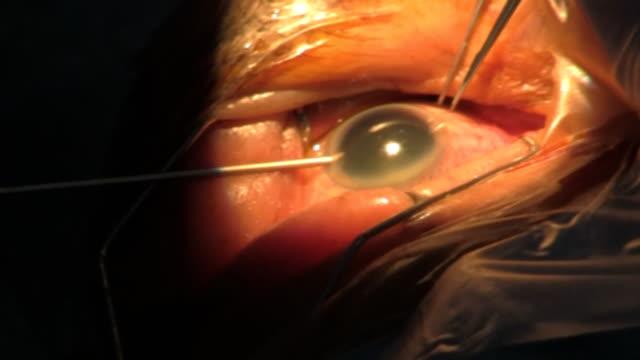 step 1. surgery cataract eye. category-b - cornea stock videos and b-roll footage