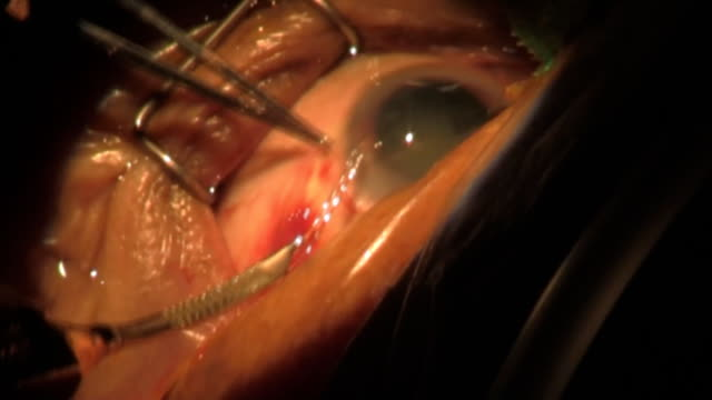 step 5. surgery cataract. category-a(clip 2) - operating stock videos & royalty-free footage