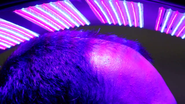 Stimulation apparatus of hair growth