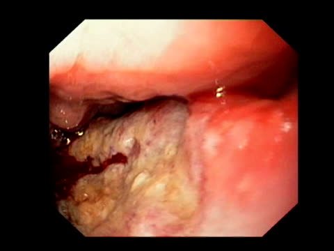 Stomach cancer biopsy, endoscope view. This is an intestinal type adenocarcinoma, a cancer of glandular tissue. The endoscope claw takes a small sample of the cancer for tests..