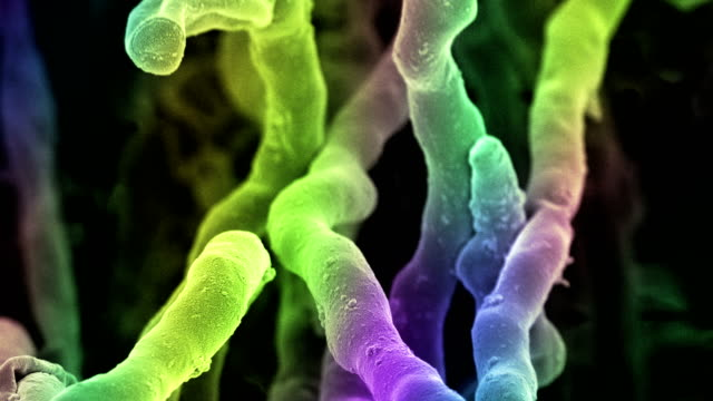 Streptomyces coelicoflavus bacteria, SEM