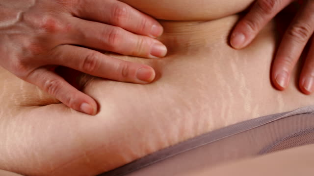 stretch marks - stomach stock videos and b-roll footage