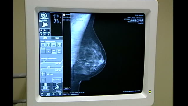 study question efficacy of breast cancer screening; int close shots of computer screen showing x-ray image of breast mammogram - scientific imaging technique stock videos & royalty-free footage