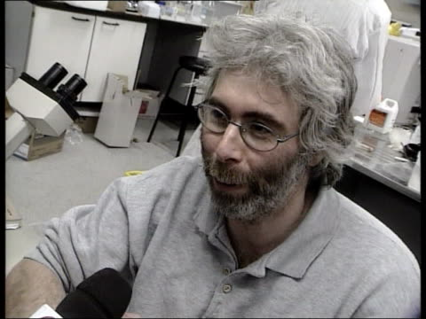 dc5l peter lane england durham university int i/c pan to dr colin jahoda dr colin jahoda interview sot took cells from my scalp and put them beneath... - hair follicle stock videos and b-roll footage
