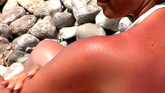 hd: sunburned skin - sunbathing stock videos & royalty-free footage