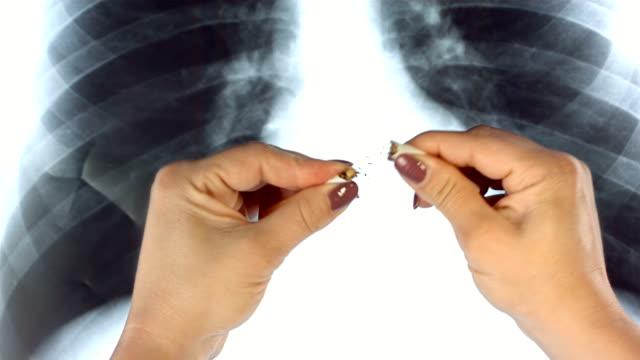 vídeos de stock, filmes e b-roll de super câmera hd-seg: parar de fumar - bronquite