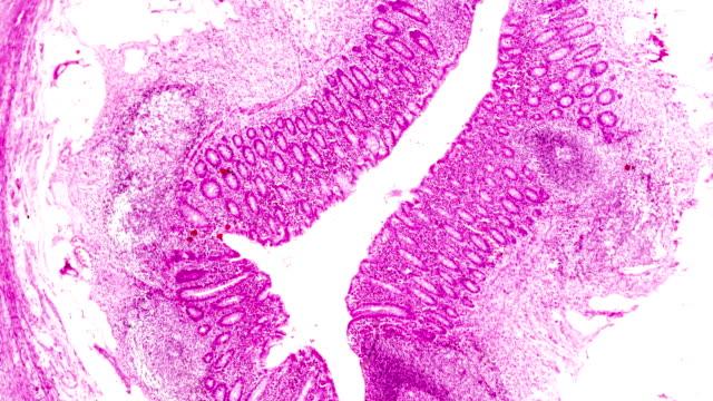 軽いミルコス内視鏡下の化膿性炎症(付録) - 虫垂点の映像素材/bロール