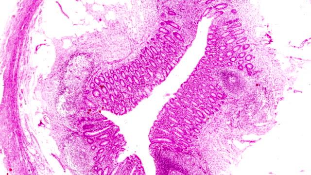 軽いミルコス内視鏡下の化膿性炎症(付録) - 盲腸点の映像素材/bロール