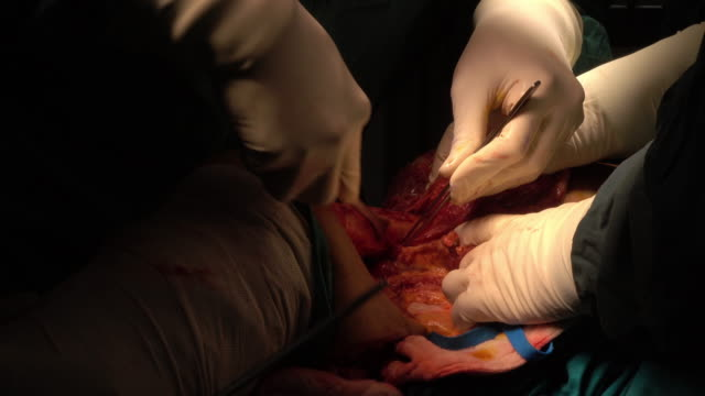 surgeon and team perform above knee amputation for patients who had right foot wet gangrene - amputee stock videos & royalty-free footage
