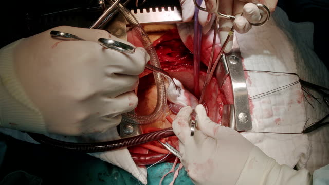 chirurgo applica la cannula venoso per vena cava inferiore - ventricolo cardiaco video stock e b–roll