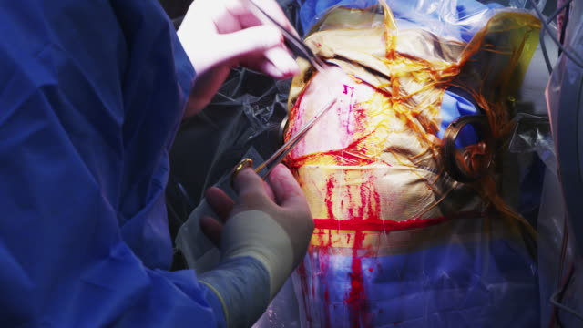 surgeon applying sutures to a patient's head after a neurological operation. - neurosurgery stock videos & royalty-free footage