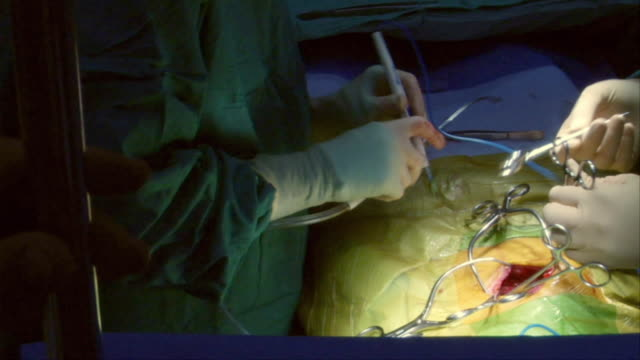 HA, CU, PAN, Surgeon assisted by nurse operating on open abdomen, Berkeley, California, USA
