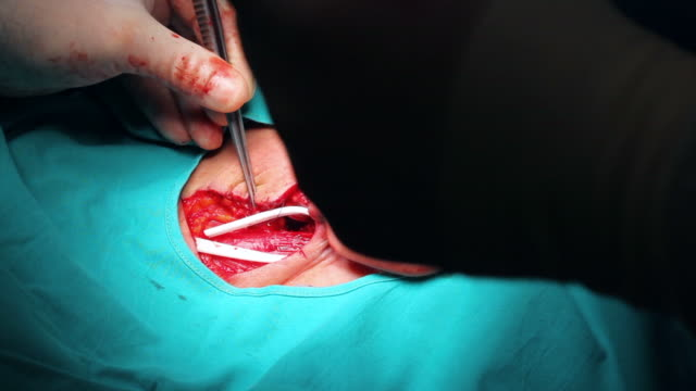 HD: Surgeon is stitching up the patient
