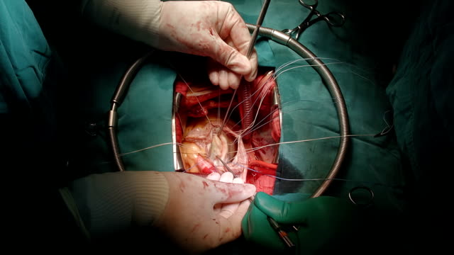 surgeon meausure annulus - bicuspid stock videos & royalty-free footage
