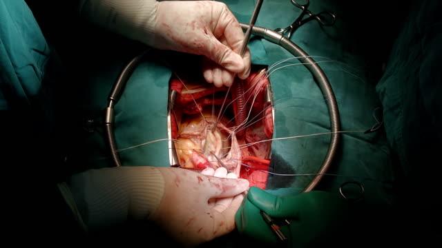 surgeon meausure annulus - atrioventricular valve stock videos & royalty-free footage