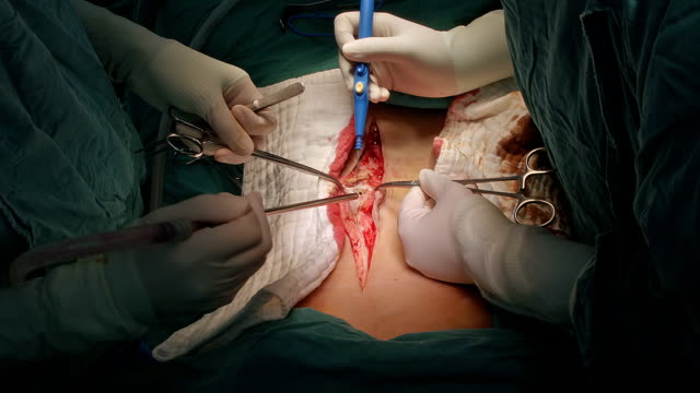 surgeon open abdomen - sigmoid colon stock videos & royalty-free footage