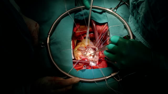 surgeon peeling calcified from mitreal leaflet - atrium heart stock videos & royalty-free footage