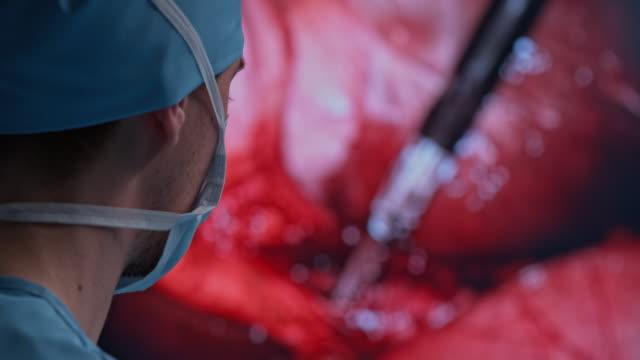 PAN Surgeon performing laparoscopic surgery