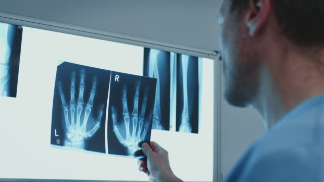surgeon pointing at fingers on medical x-ray image - radiazione video stock e b–roll
