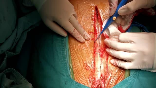 surgeon stop bleeding median sternotomy incision - sternum stock videos & royalty-free footage